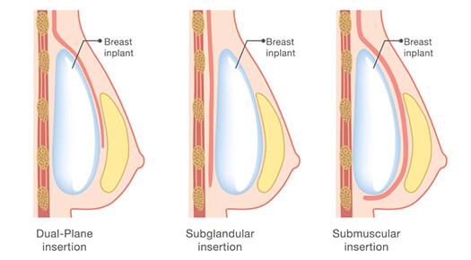 Breast-Augmentation-using-implants