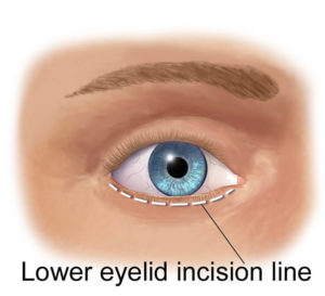 Face-Neck-lower-eyelid-incision-line