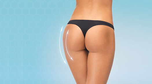 Body Lift- buttock enhancement- Dr Abizer Kapadia