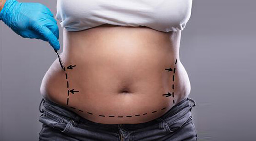 Body Lifts- tummy tuck - Dr Abizer Kapadia