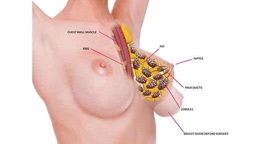 Breast Lift - Dr Abizer Kapadia