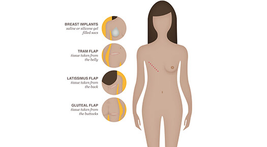 Breast Reconstruction - Dr Abizer Kapadia