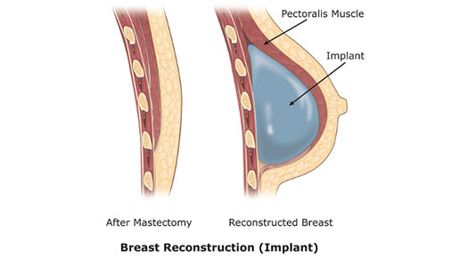 Breast Reconstruction Implant- Dr Abizer Kapadia