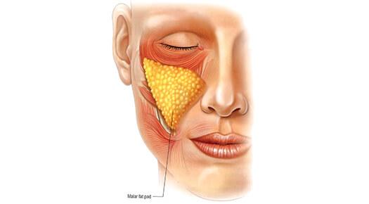 Face & Neck - Cheek Augmentation - Dr Abizer Kapadia