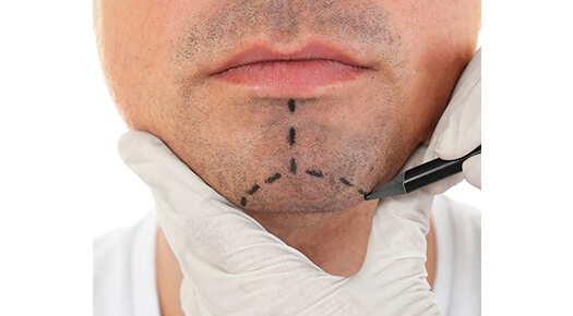 Face & Neck - Chin Surgery - Dr Abizer Kapadia