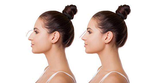 Face & Neck - Rhinoplasty - Dr Abizer Kapadia