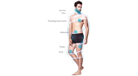 Male-Specific Plastic Surgery - Body Toning and Contouring – Arms & Calves - Dr Abizer Kapadia
