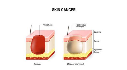 skin cancer removal procedure - Dr Abizer Kapadia