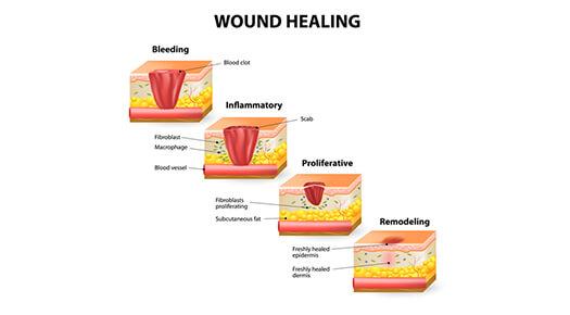wound-healing-graphic - Dr Abizer Kapadia