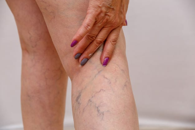 Spider Vein Treatment – Sclerotherapy