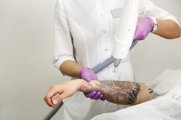 Tattoo removal banner